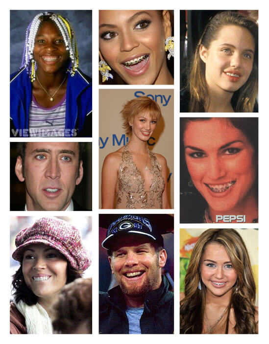 Celebrities with Dental Braces